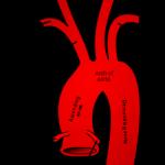 קשת אבי העורקים . שימו לב שהעורק ה subclavian הימני יוצא מה bronchopulmonary trunk