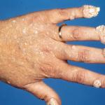 יבלות וירוס הפפילומה בידיים