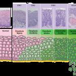 תאור היסטולוגי (תאים) של שינויים בצוואר הרחם